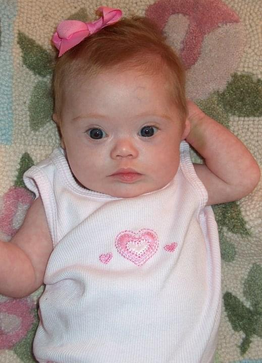 Raising a daughter with Down syndrome - beautiful baby girl