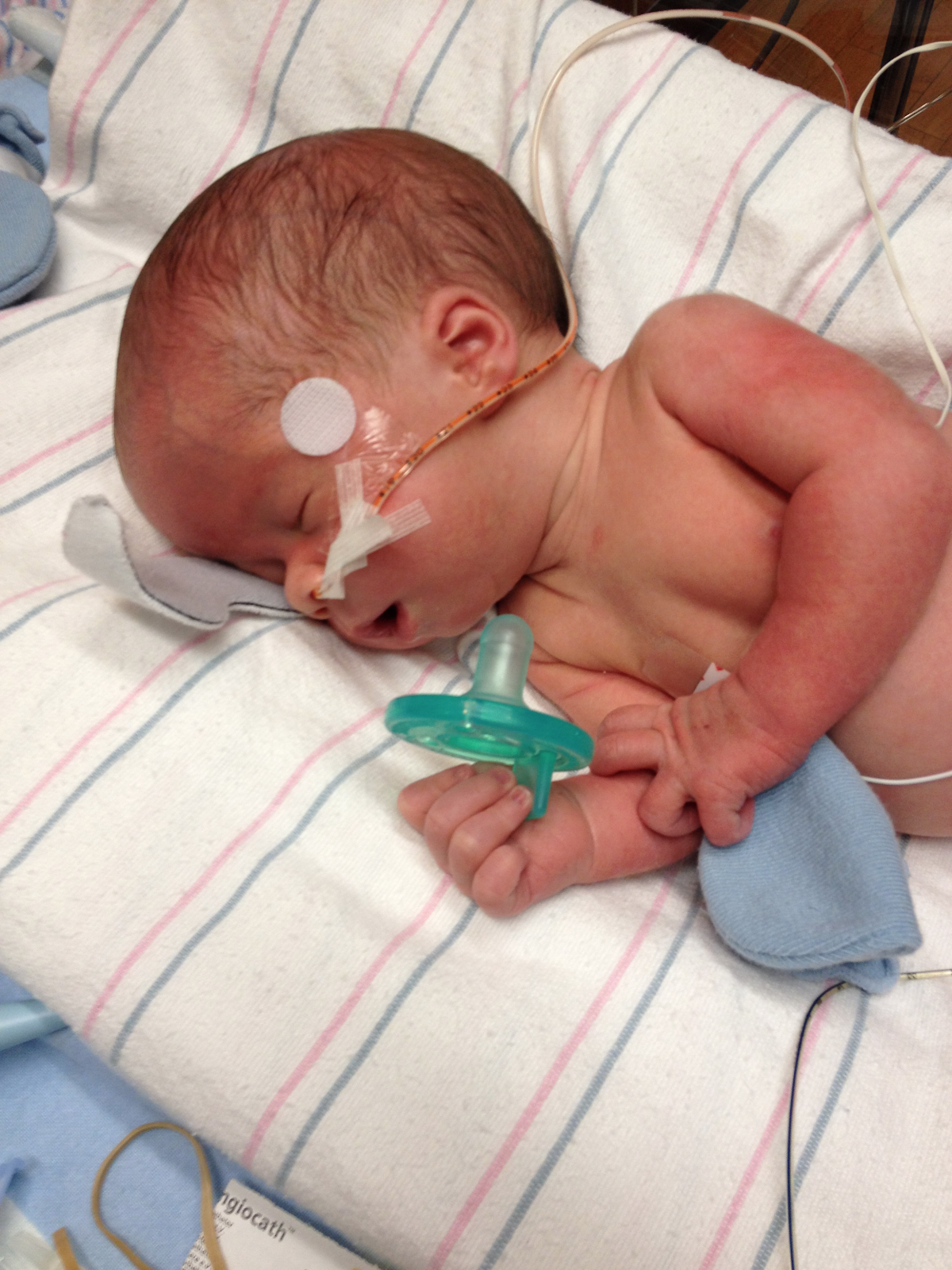 Spina bifida - Andrew was rushed to Children's of Alabama and underwent surgery.